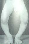 Bowed Legs Image